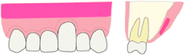 歯肉の採取