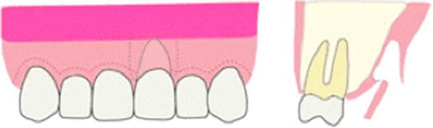 歯肉の移植