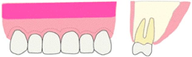 歯肉の縫合