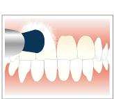 歯のクリーニング、歯垢、歯石、着色の除去