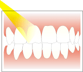 白くしたい歯に薬剤を塗り光を当てる